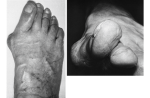 Hallux valgus-bunion deformity-treatment-kolkata