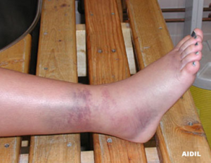 ankle-sprain-treatment-kolkata