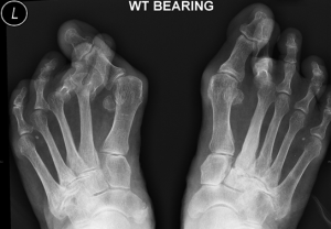 arthrodesis for foot deformity in kolkata