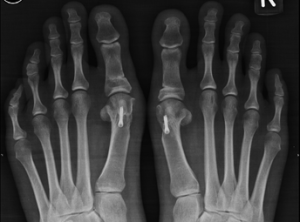 bunion correction treatment kolkata