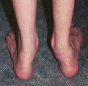 flat-foot-deformity-treatment-kolkata