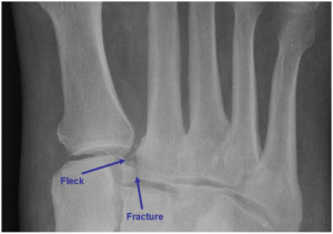lisfranc_joint_injury