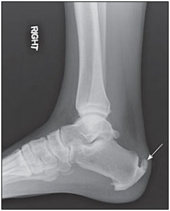 X-RAY-OF-CALCIFIC-TENDINITES