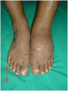 swallen_inflamed_foot