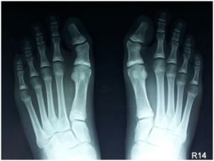 X-Ray-of-L-Shaped-Deformity