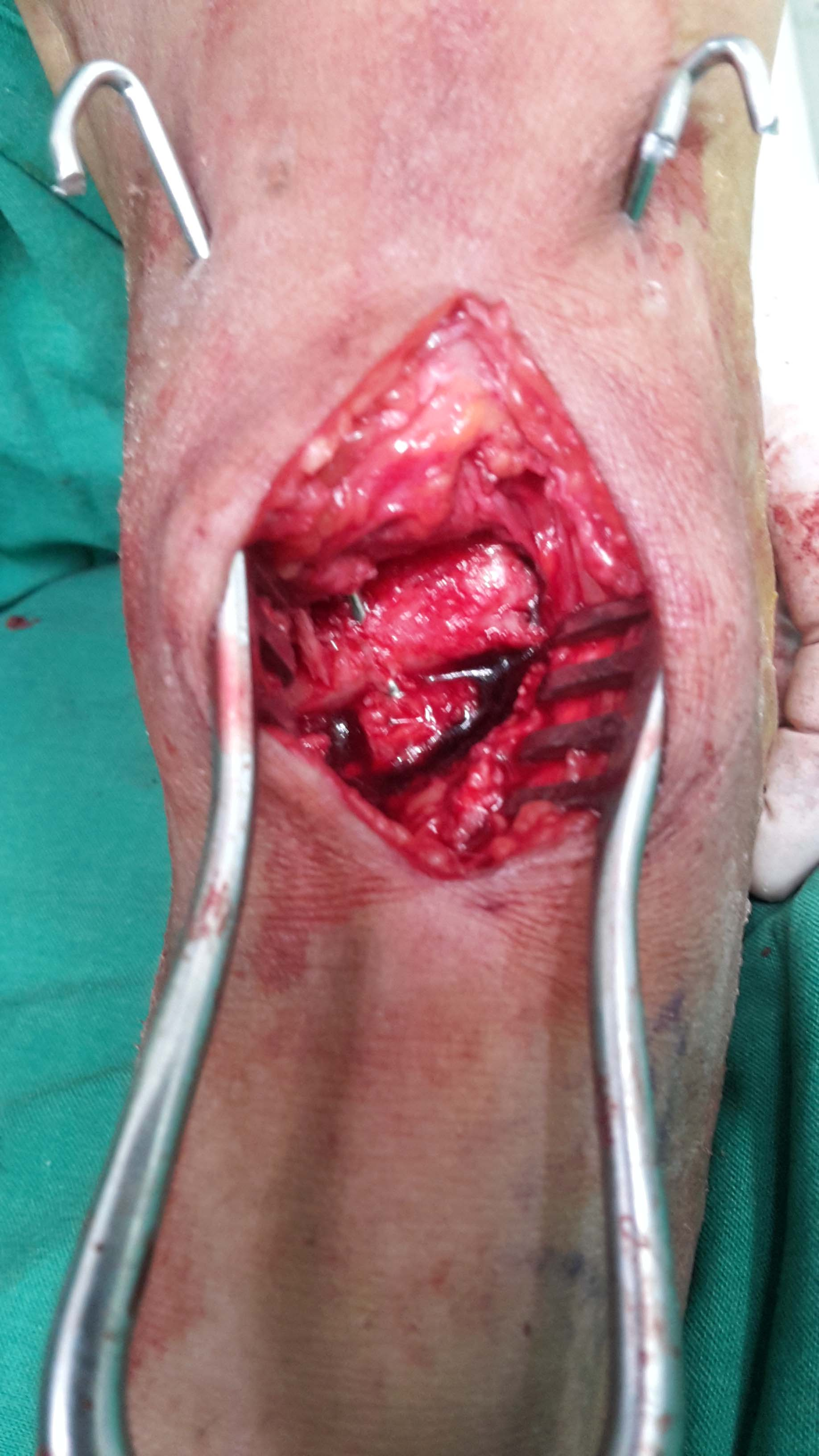cyst excised and reconstruction done with bone graft