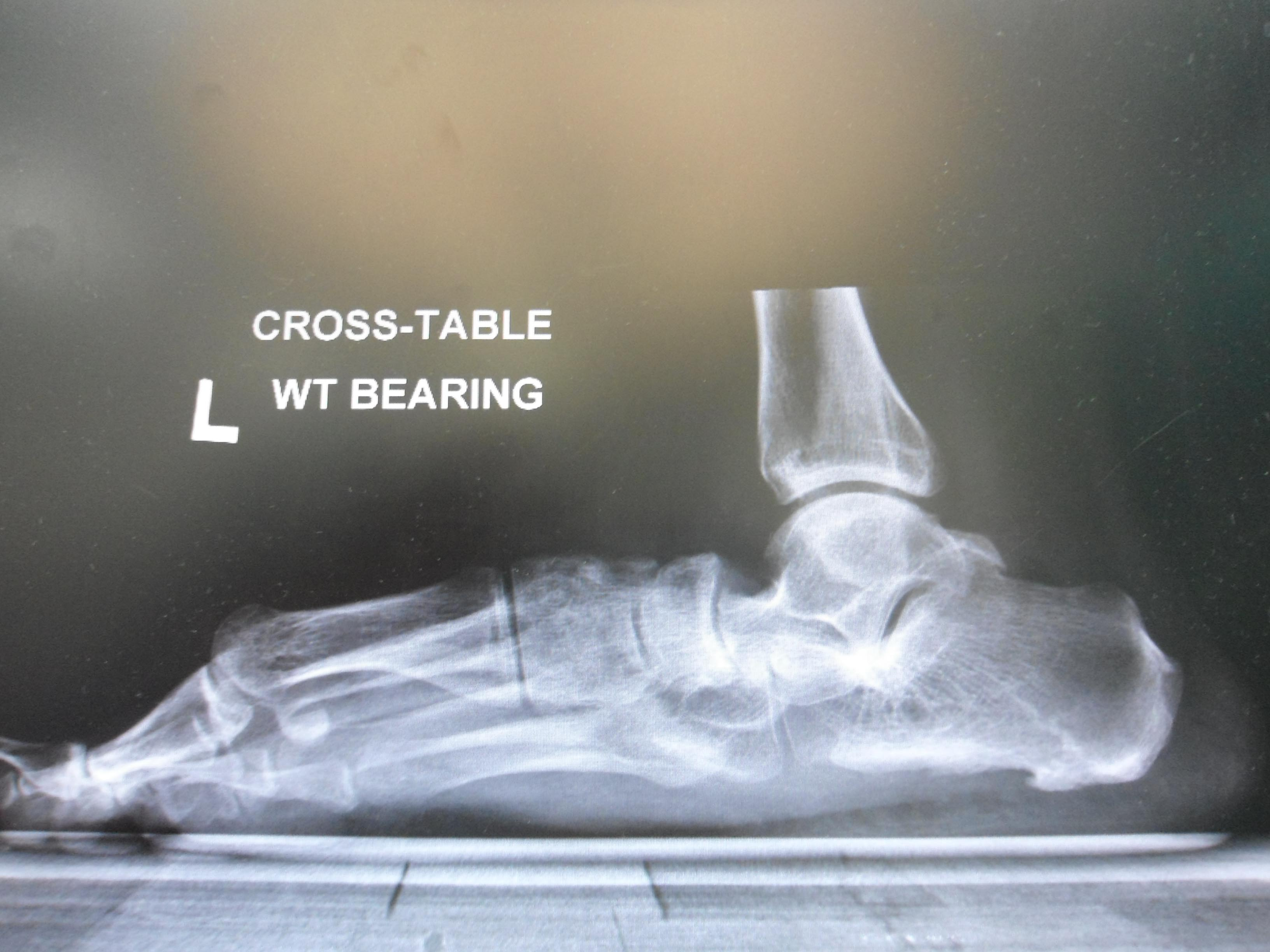 flatfoot deformity with forefoot supination