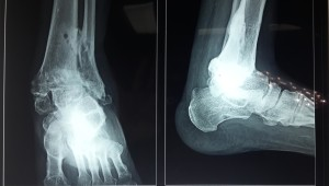 "<a href=""http://anklefootsurgery.com/hindfoot-fusion/"">hindfoot fusion</a>"