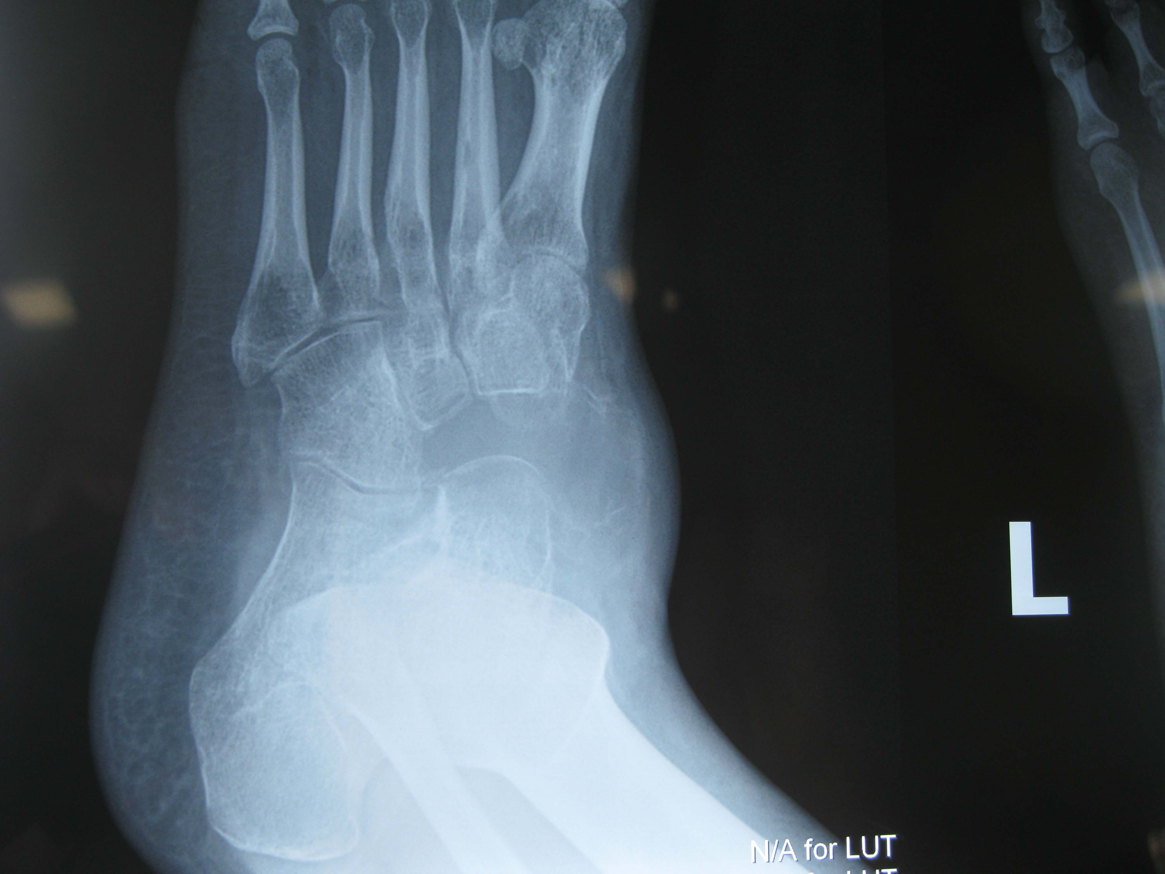 pre operative cyst at navicular