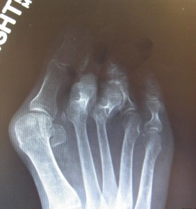 <a href=&quot;http://anklefootsurgery.com/rheumatoid-foot-deformity-correction/&quot;>rheumatoid foot deformity correction</a>
