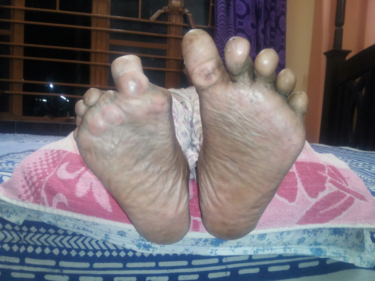 rheumatoid foot deformity post correction