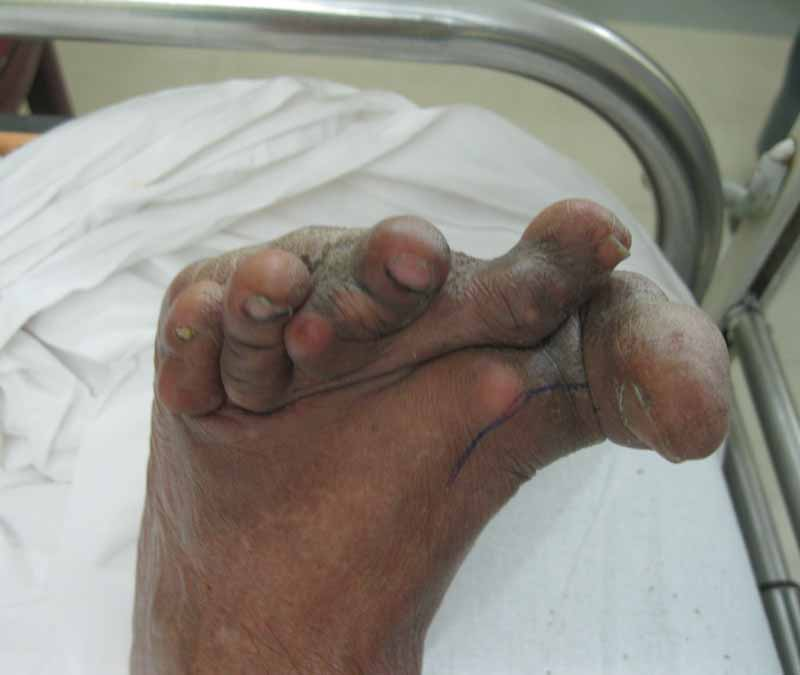 Rheumatoid Foot Deformity Pre Correction
